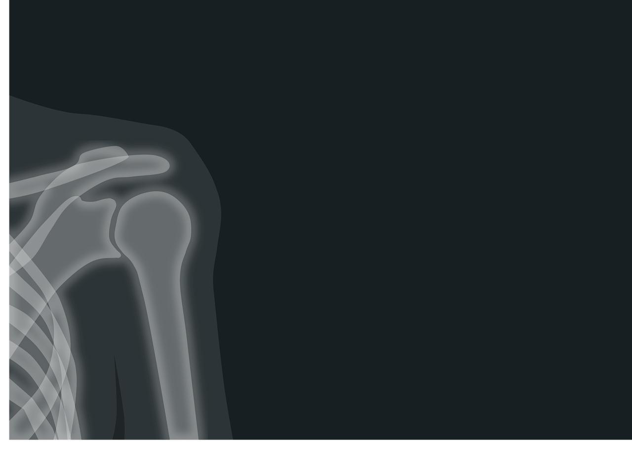 В Марий Эл ввели в эксплуатацию новый рентгеновский аппарат